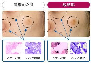 敏感肌のバリア機能低下.png